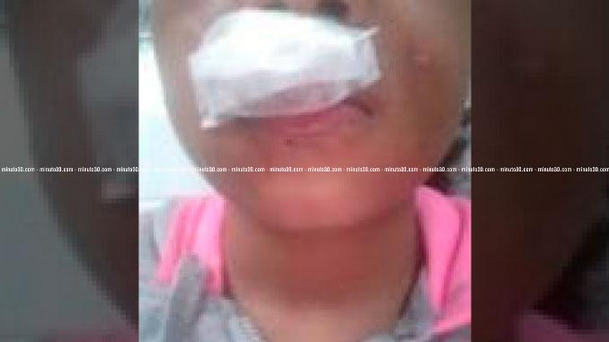 Menor atacada por un perro de raza Pitbull.