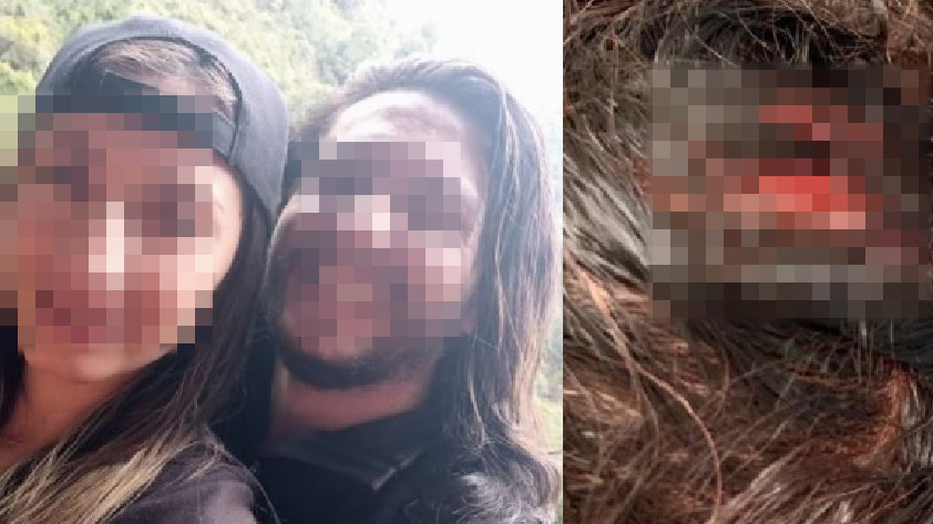 Mujer atacada con hacha en Bogotá