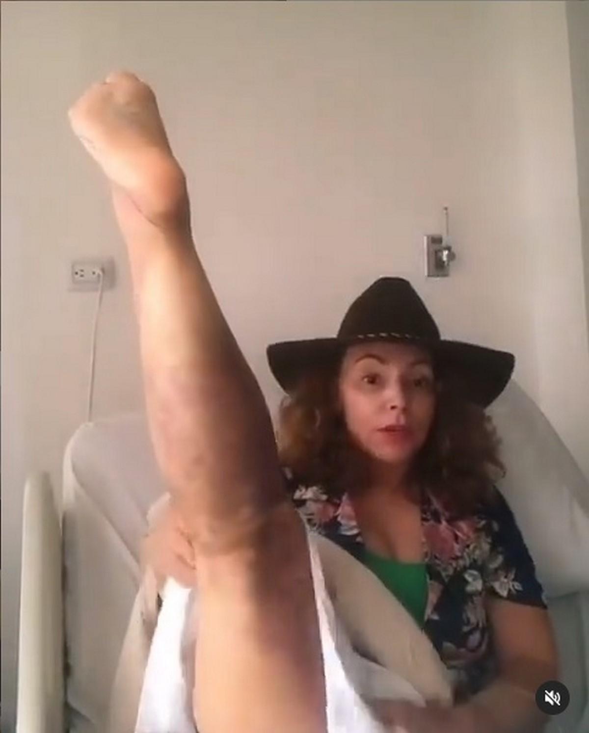 Maria Auxilio mordida 1