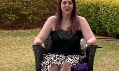mujer mordida mangosta