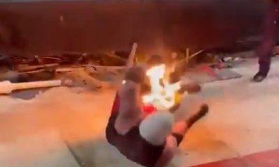quemado hombre fuego