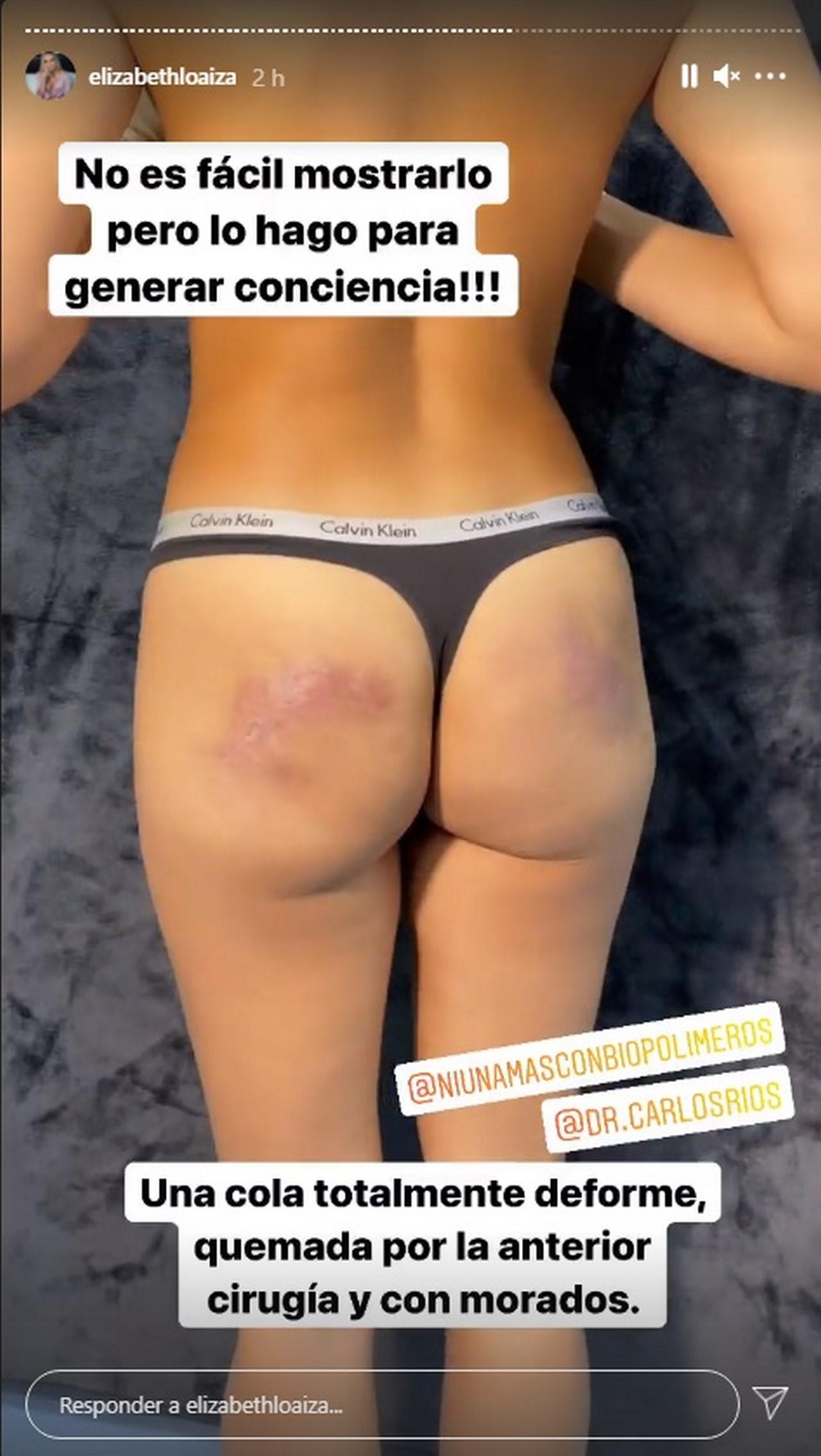 Elizabeth Loaiza Junca cirugia biopolimeros 1