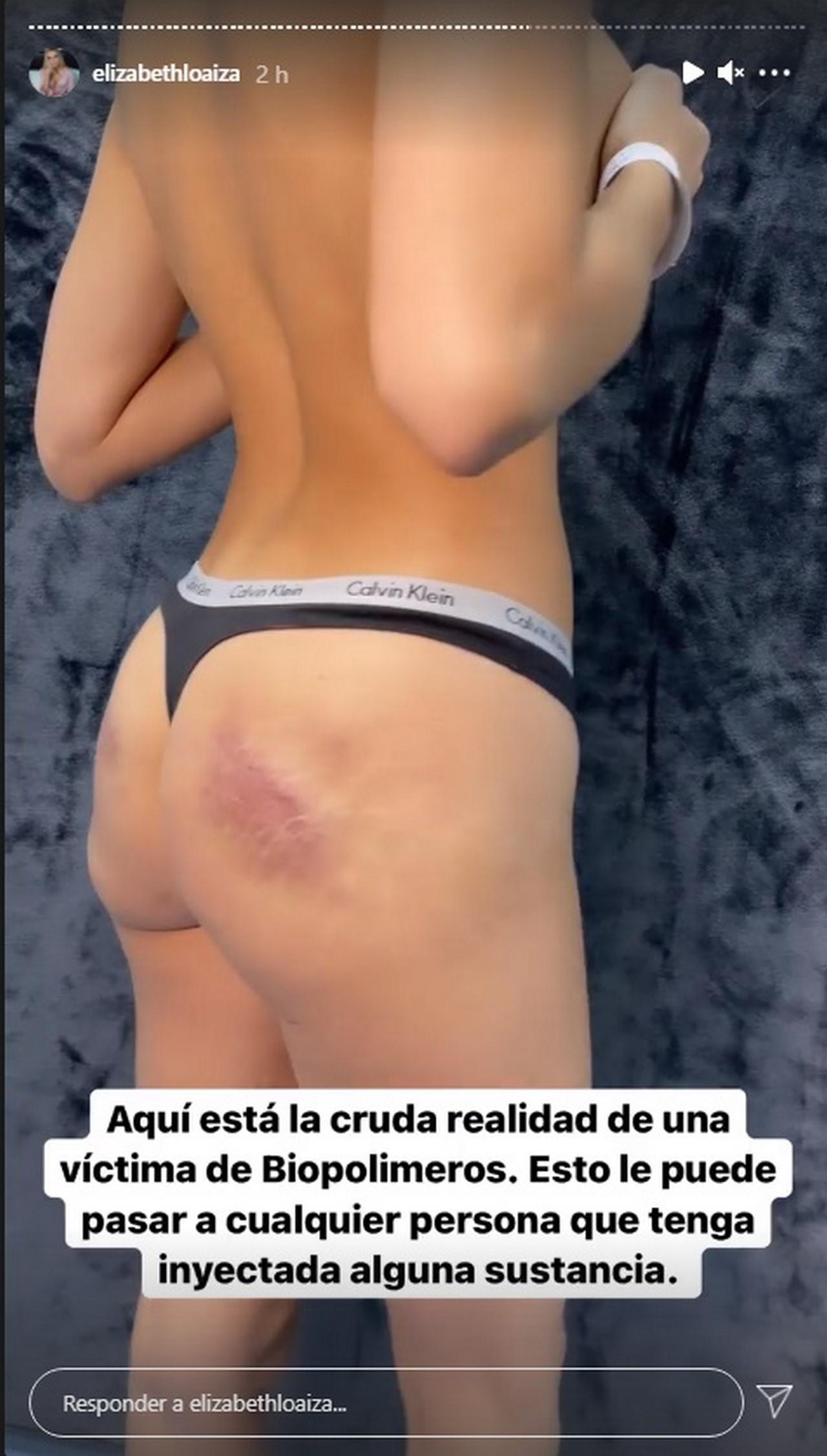 Elizabeth Loaiza Junca cirugia biopolimeros 3