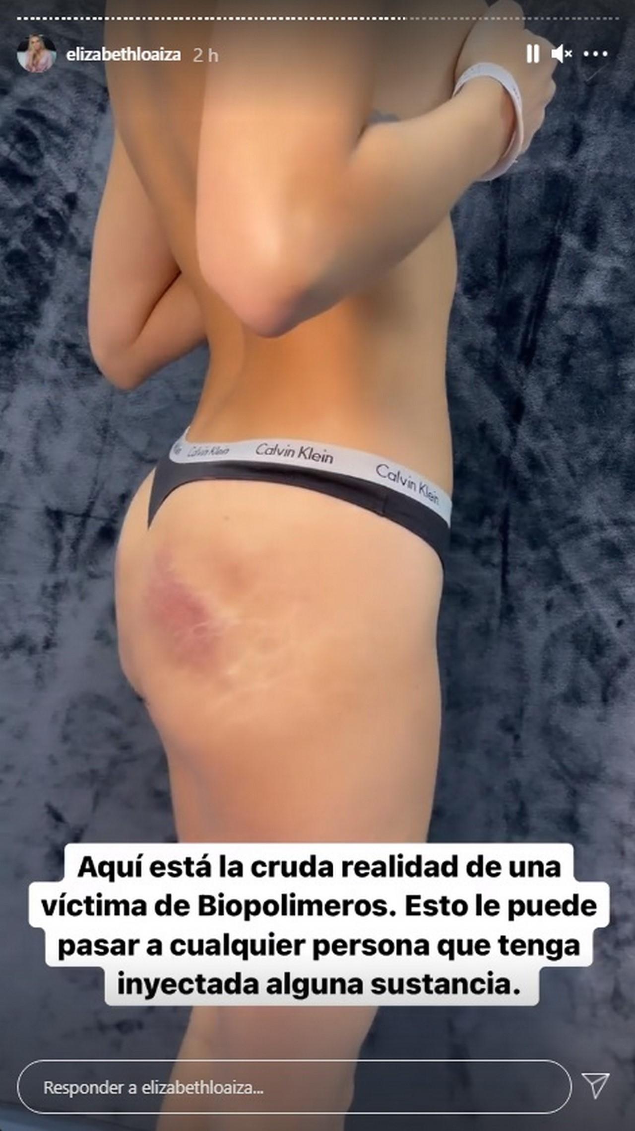 Elizabeth Loaiza Junca cirugia biopolimeros 4