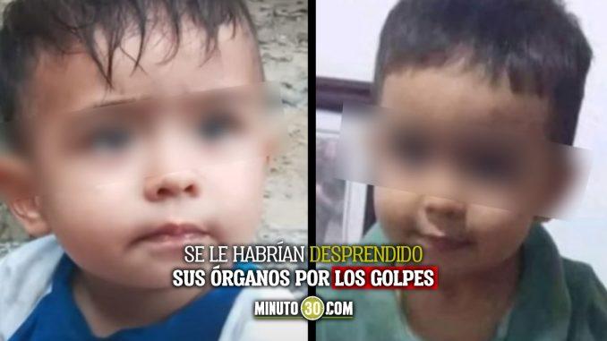 Bebé murió por los golpes que le habría dado su padrastro