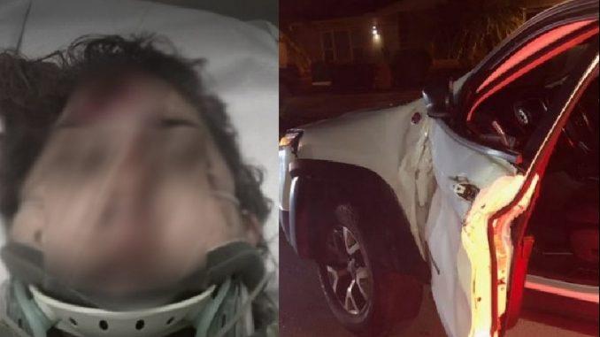 Colombiana atropellada en Miami por conductor que se voló