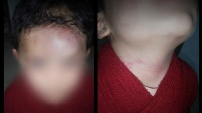 Denuncian que niño habría sido golpeado por su padrastro